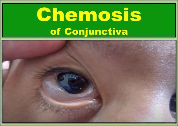 conjunctival-chemosis-of-the-eye