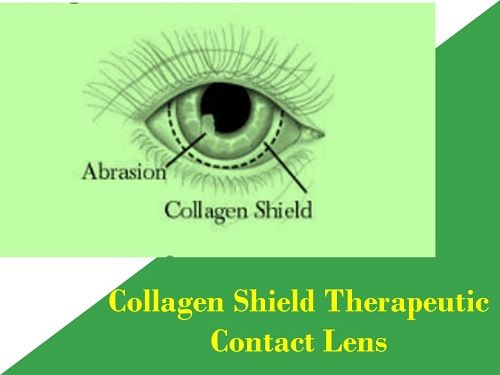 collagen-shield-therapeutic-contact-lens