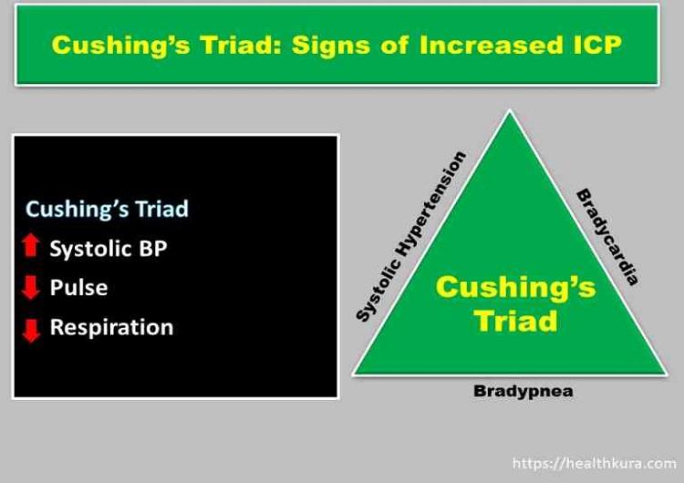 cushings-triad-in-icp