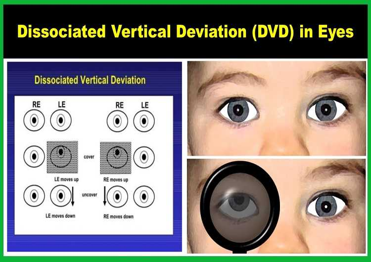 dissociated-vertical-deviation-dvd-in-eyes