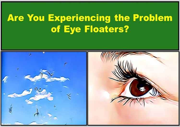 eye-floaters-wavy-squiggly-lines-in-vision