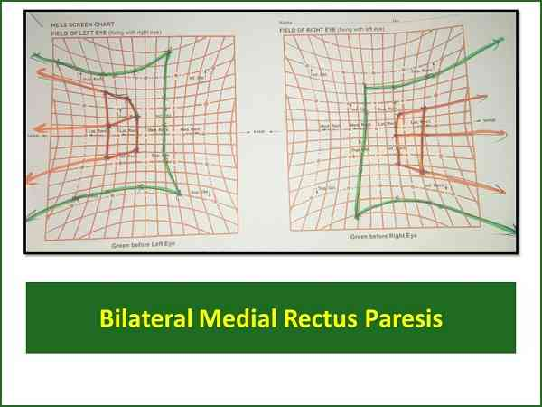hess-screen-test-of-bilateral-medial-rectus-palsy