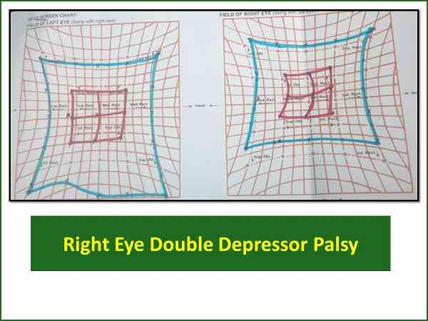 hess-charting-of-double-depressor-palsy-right-eye