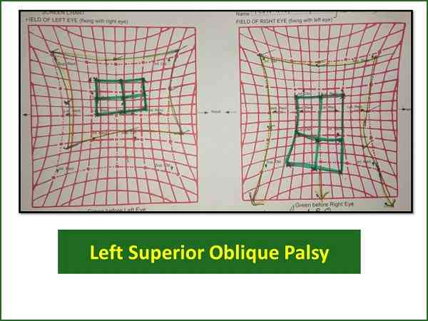 hess-charting-of-left-superior-oblique-palsy
