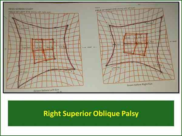 hess-charting-of-superior-oblique-palsy