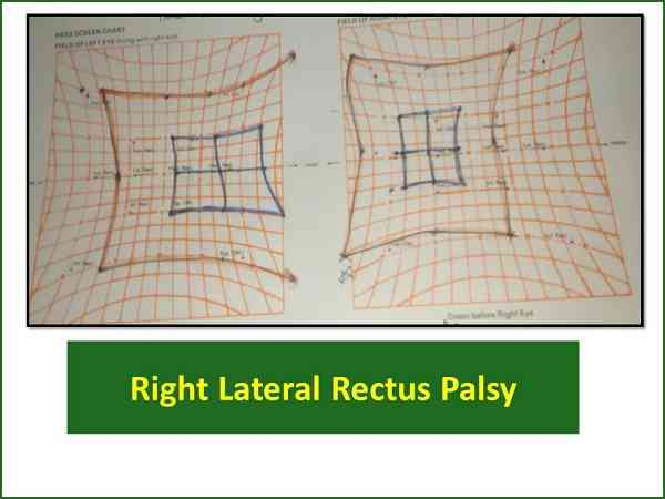 hess-screen-test-of-right-lateral-rectus-palsy