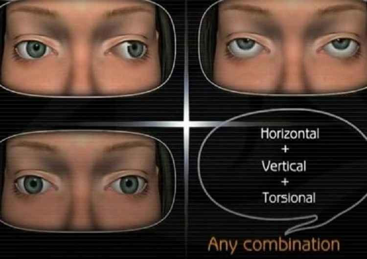 nystagmus-involuntary-eye-movements