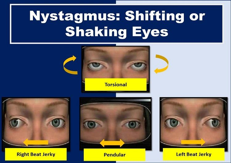 Shaking or Shifting Eyes: Nystagmus Definition, Causes, Test