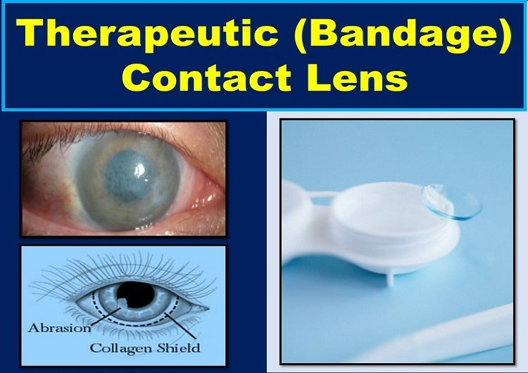 Bandage Contact Lens (Therapeutic): Indications, Types, Removal, & All