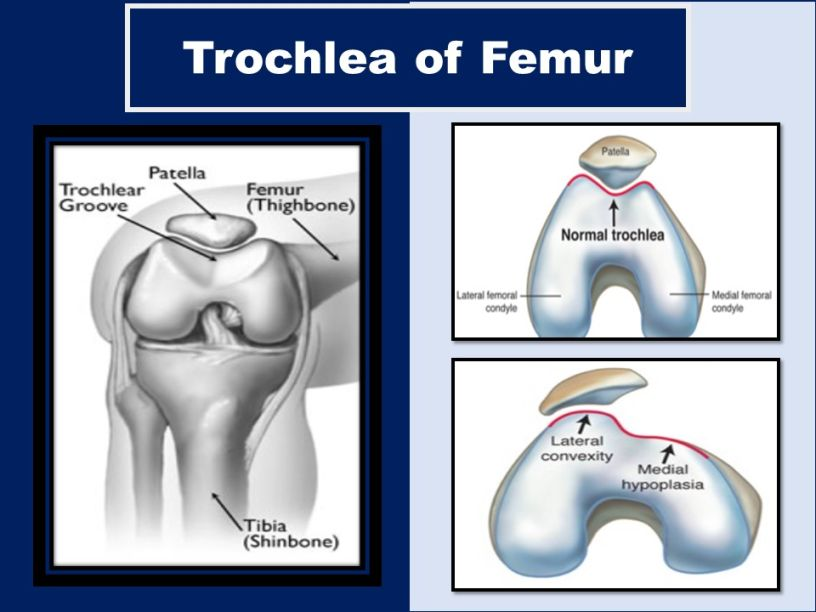 femoral-trochlear-groove