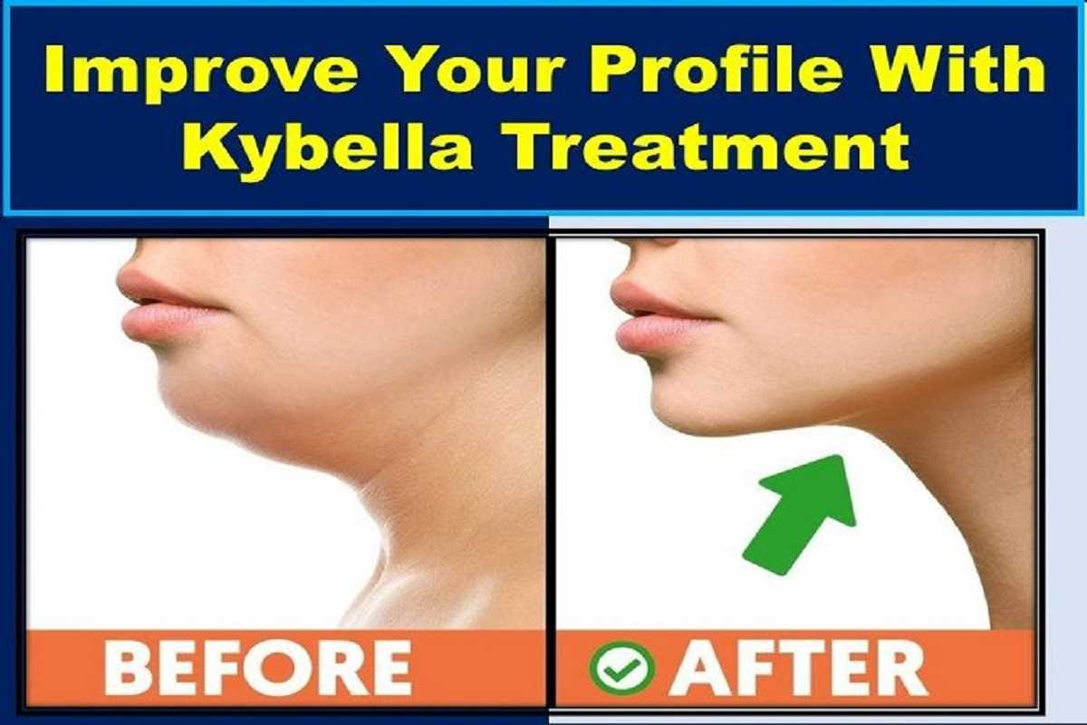 kybella-treatment-double-chin-remover-before-and-after