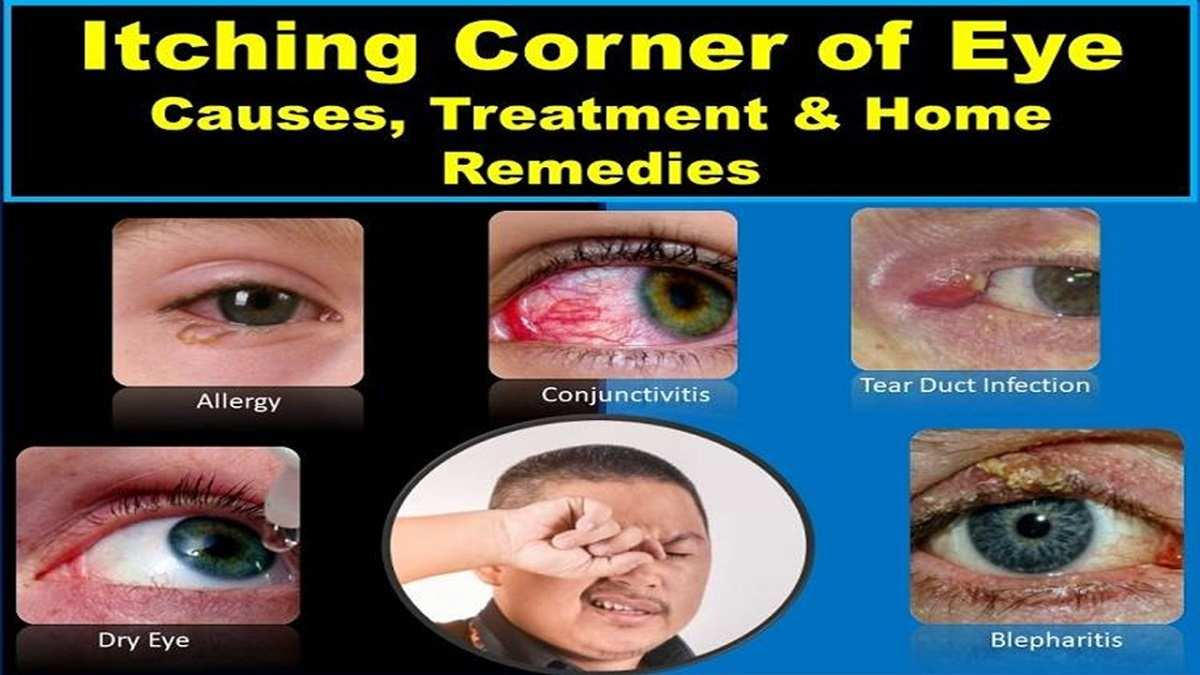 eye-itching-in-the-corner-inner-outer-treatment-home-remedies